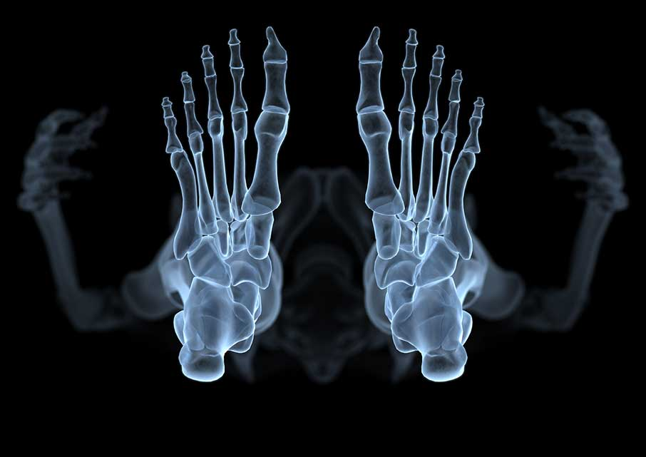 Skeleton X-Ray Style from Beneath